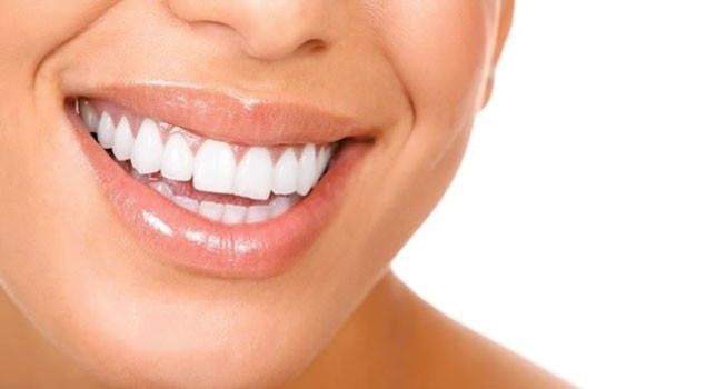 Free teeth whitening!